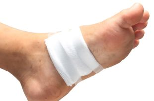 Gauze covers a foot ulcer