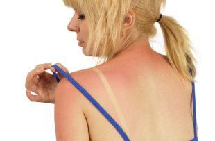 A woman examines sunburn on her shoulder