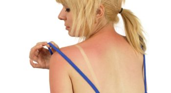 A woman examines sunburn on her shoulder