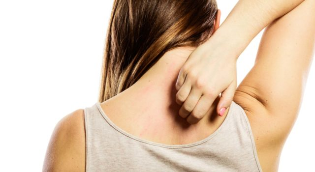 Woman scratching itchy back