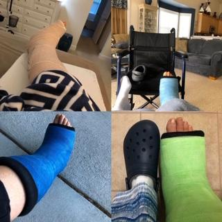 After tendon surgery in March, Pizzo has gone through through three casts, a boot and physical therapy on her path toward recovery.